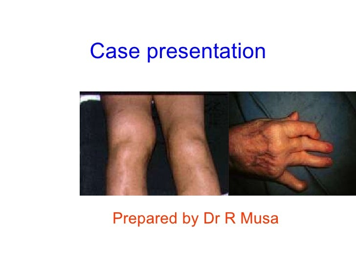 Case presentation Prepared by Dr R Musa