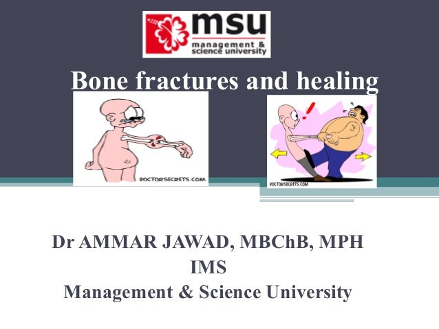 Bone fractures and healing Dr AMMAR JAWAD, MBChB, MPH IMS Management & Science University