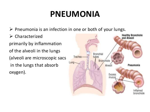 the clinical causes symptoms and treatment of pneumonia