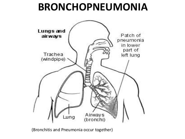 Pneumonia Final Ppt 240912 on chest pain lungs