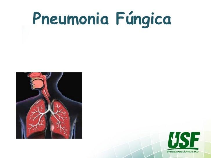 Pneumonia Fúngica
