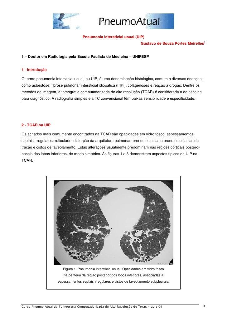 Pneumonia intersticial usual (UIP)                                                                                        ...