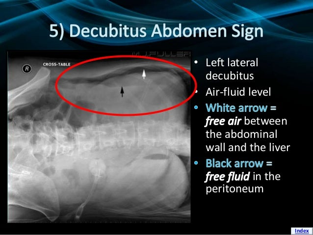 • Left lateral decubitus • Air-fluid level between the abdominal wall and the liver in the peritoneum Index