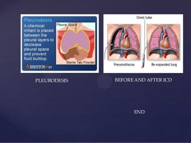 Pneumothorax Fahad Basheer