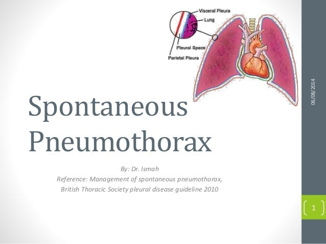 Spontaneous Pneumothorax By: Dr. Ismah Reference: Management of spontaneous pneumothorax, British Thoracic Society pleural...
