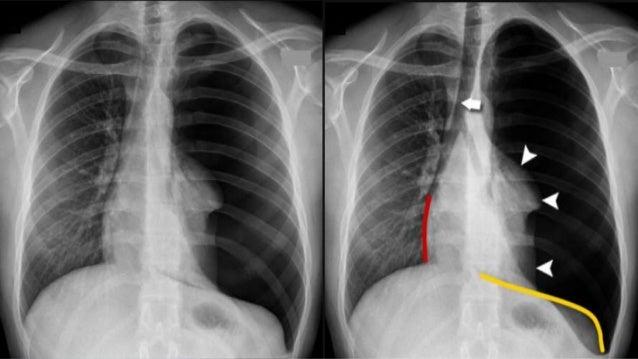 Pneumothorax   638 x 359 jpeg 54kB