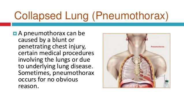 What are the symptoms of a collapsed lung?