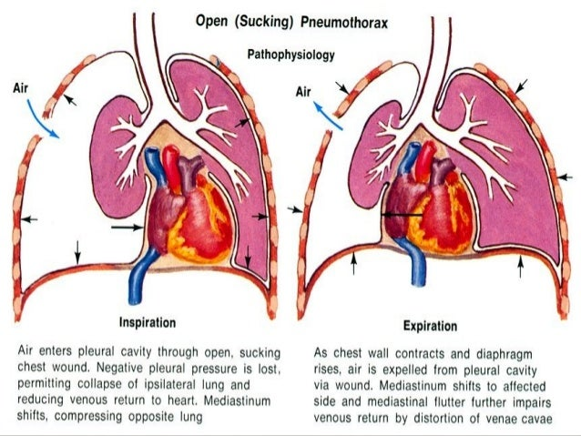 Pneumothorax Class on heart diagram
