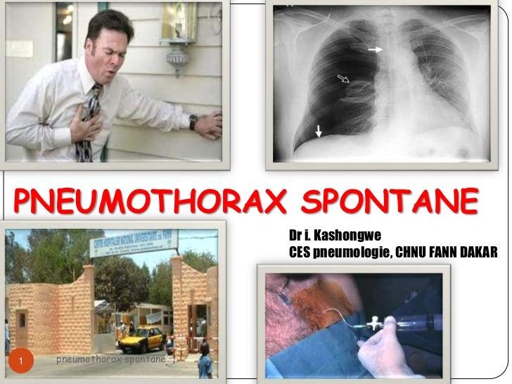 PNEUMOTHORAX SPONTANE                            Dr i. Kashongwe                            CES pneumologie, CHNU FANN DAK...