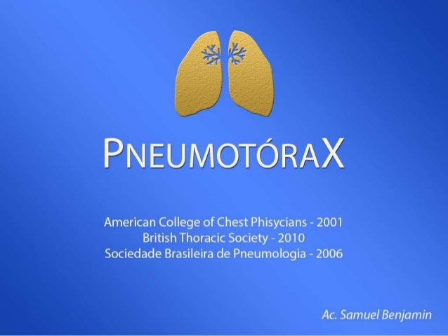 Definição • Pneumotórax é o acúmulo de ar livre na cavidade pleural