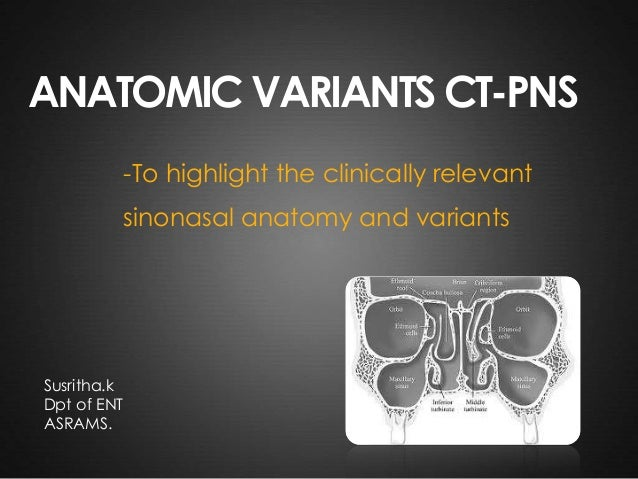 ANATOMICAL VARIANTS OF CT PNS