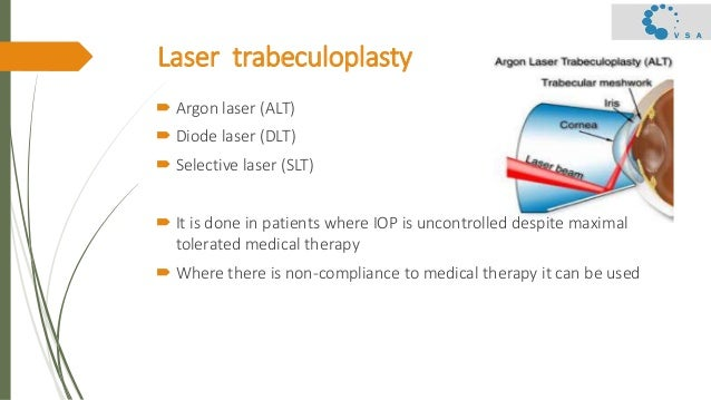 Primary open angle glaucoma  – surgical management Slide 2