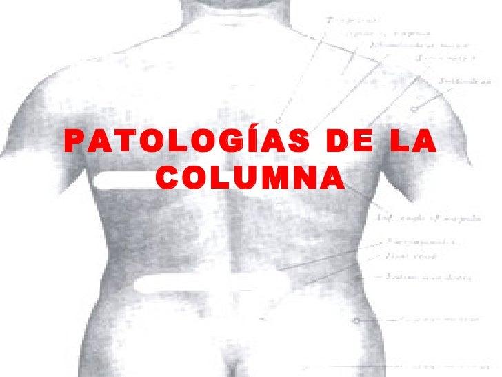 PATOLOGÍAS DE LA COLUMNA