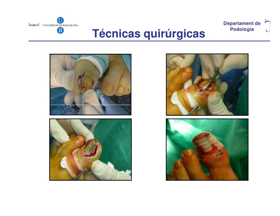 Departament de                         PodologiaTécnicas quirúrgicas