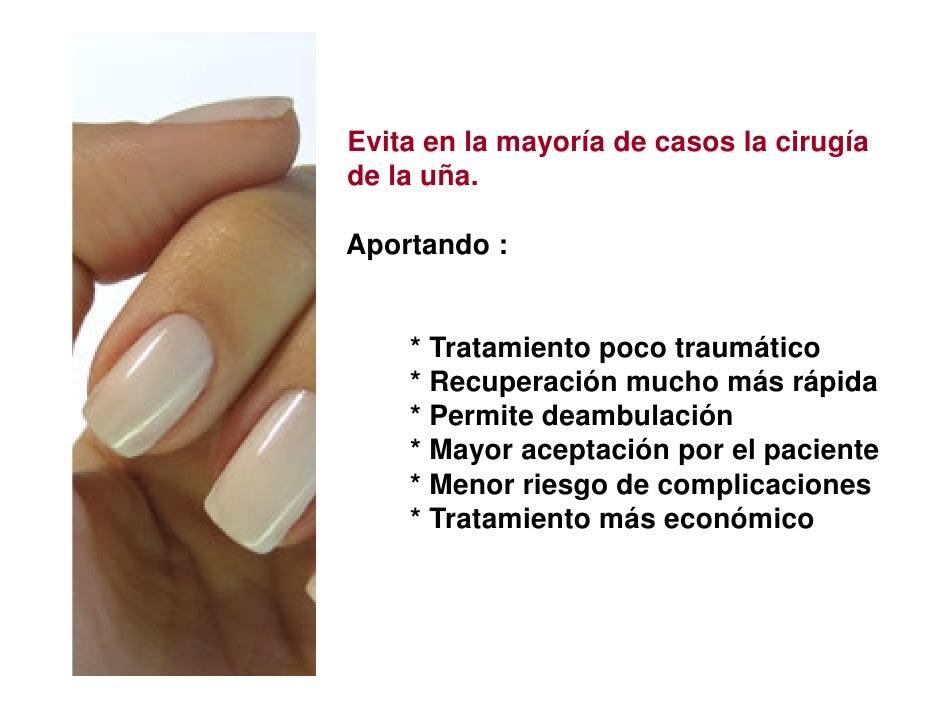 Evita en la mayoría de casos la cirugíade la uña.Aportando :    * Tratamiento poco traumático    * Recuperación mucho más ...