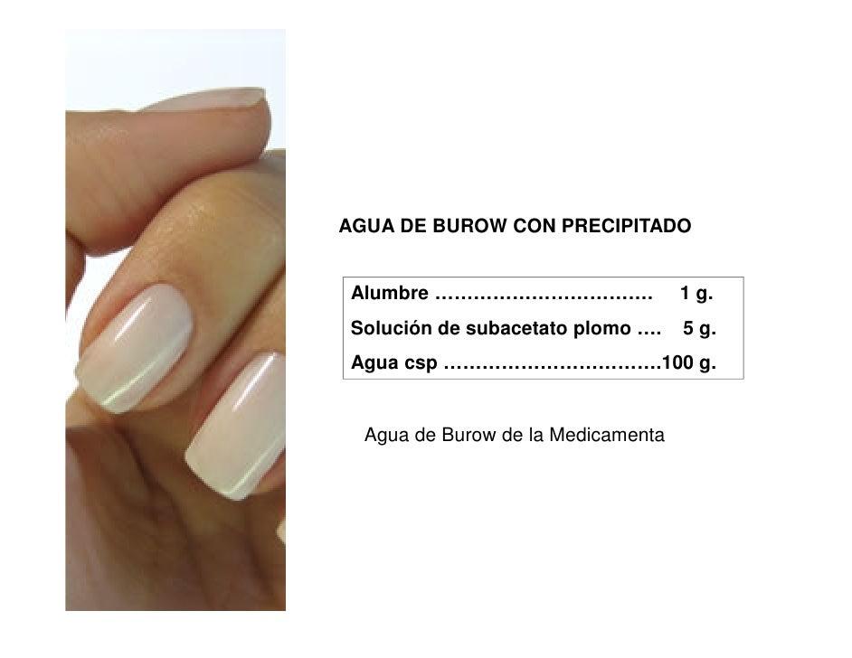 AGUA DE BUROW CON PRECIPITADO Alumbre …………………………….               1 g. Solución de subacetato plomo ….    5 g. Agua csp ………...
