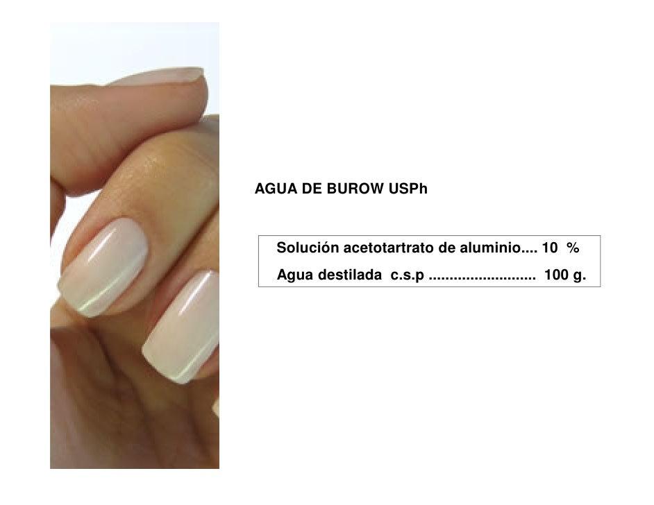 AGUA DE BUROW USPh  Solución acetotartrato de aluminio.... 10 %  Agua destilada c.s.p .......................... 100 g.