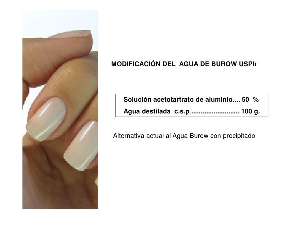 MODIFICACIÓN DEL AGUA DE BUROW USPh   Solución acetotartrato de aluminio.... 50 %   Agua destilada c.s.p ....................