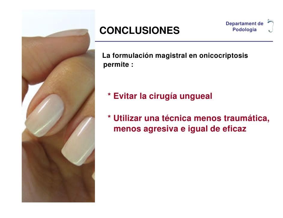 Departament deCONCLUSIONES                         PodologiaLa formulación magistral en onicocriptosispermite : * Evitar l...