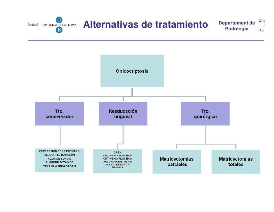 Alternativas de tratamiento   Departament de                                Podologia