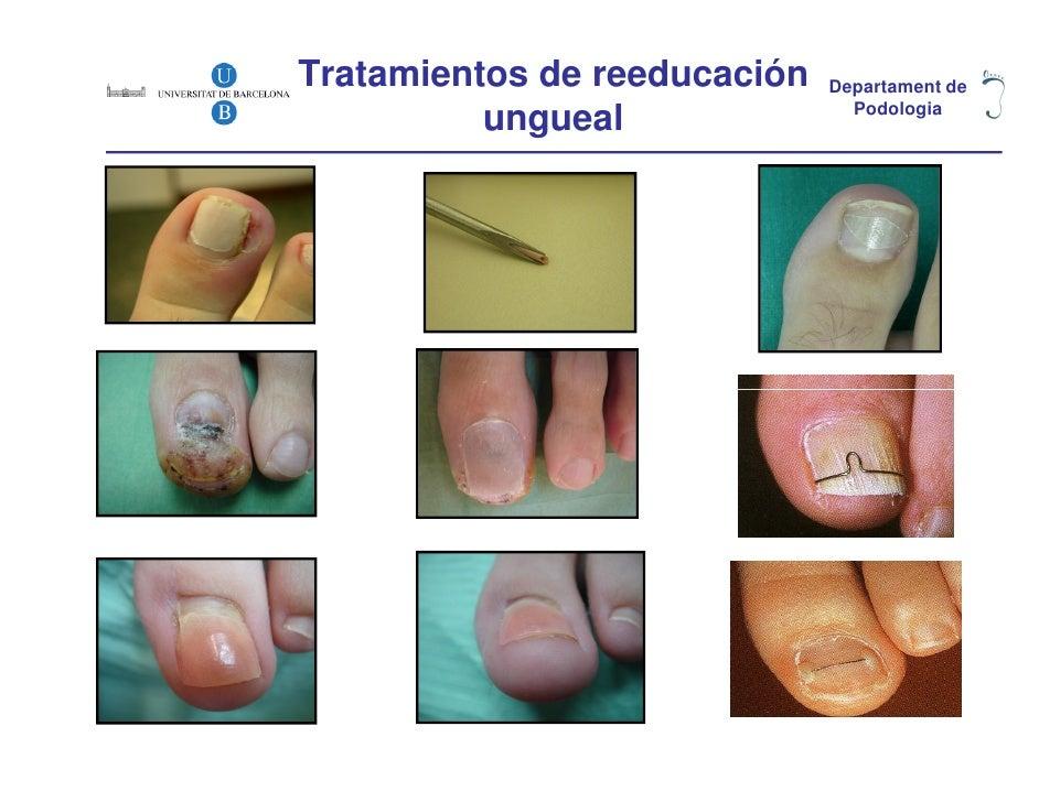 Tratamientos de reeducación   Departament de          ungueal               Podologia
