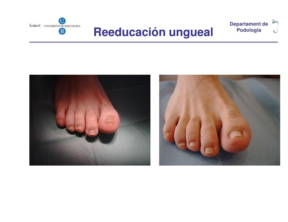 Departament deReeducación ungueal     Podologia