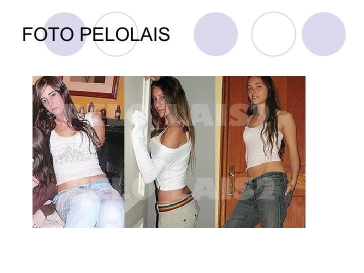 FOTO PELOLAIS