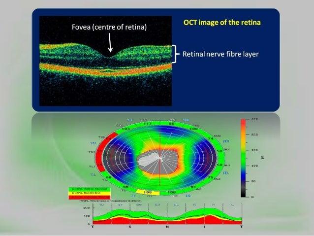 Polarised vs UV400 lenses