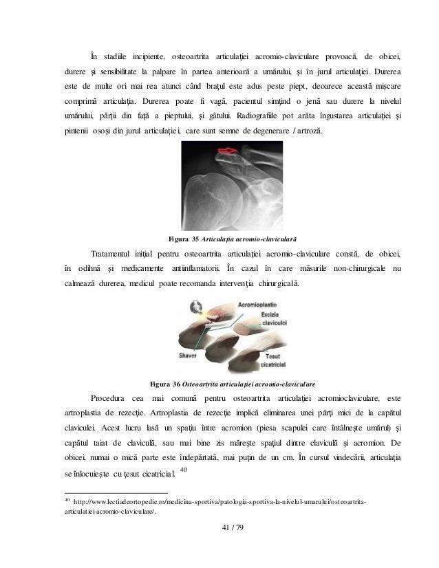Tratament pentru osteocondroza antebratului