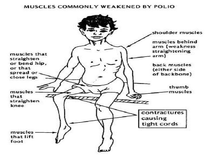 Polio Final Presentation