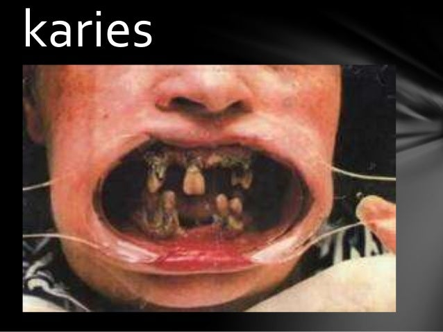 hål i tänderna