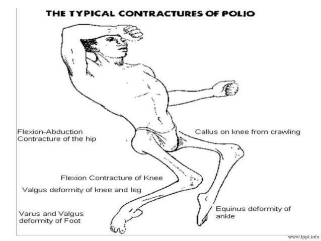 polio lower limb deformity, Skeleton