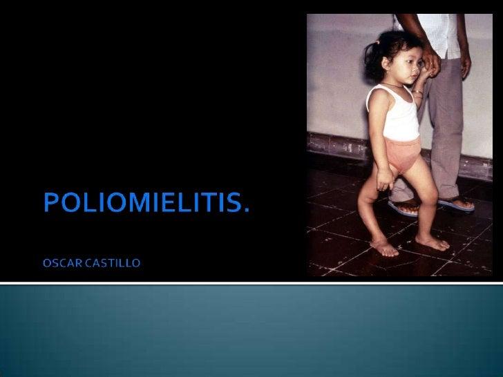 Es una enfermedad viral que puede afectar los  nervios y llevar a Parálisis.   Mayor incidencia en lactantes y en menores...