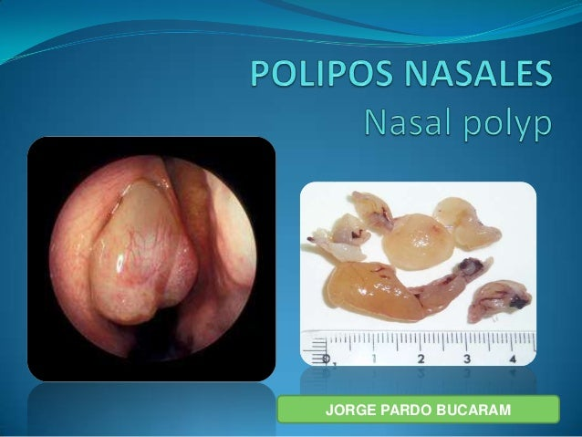 Polipos Nasales