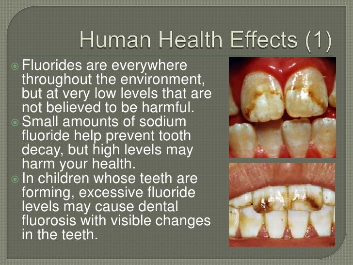excessive fluorine in water found to cause tooth decay Tooth decay, when left untreated, can lead to serious health problems,  a link  between high fluoride levels found naturally in drinking water in china and  the  most obvious health effect of excess fluoride exposure is dental.