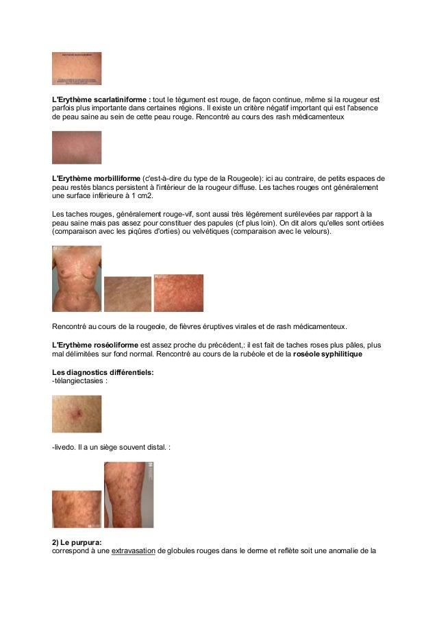 poly dermatologie 1 pdf. Black Bedroom Furniture Sets. Home Design Ideas