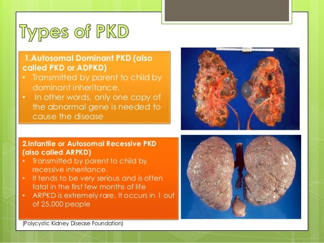 Polycystic kidney disease - Wikipedia