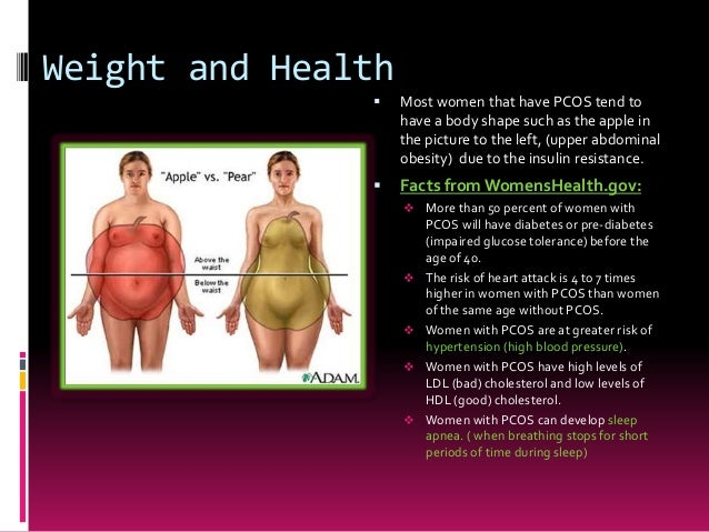 Research paper on pcos