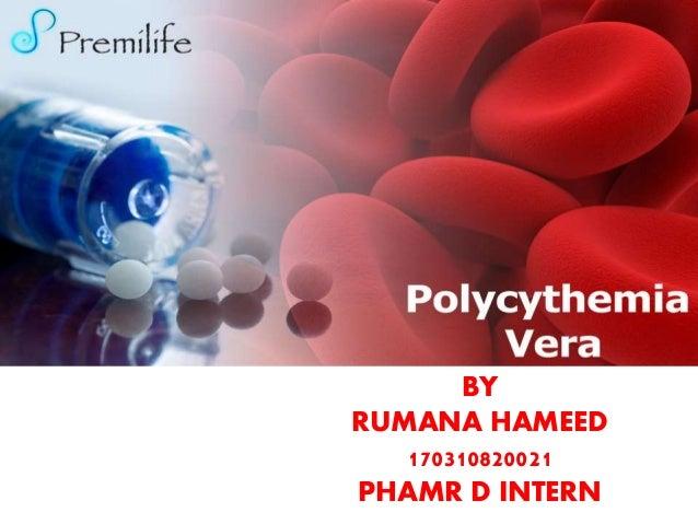 POLYCYTHEMIA VERA BY RUMANA HAMEED 170310820021 PHAMR D INTERN