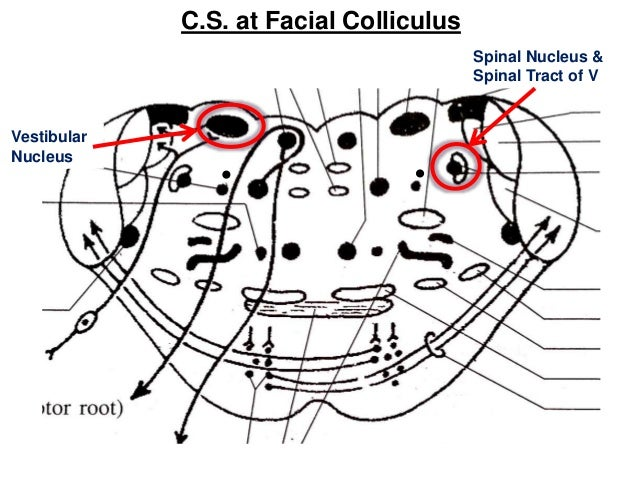 Facial colliculus syndrome picture 123