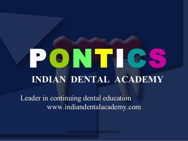 PONTICS INDIAN DENTAL ACADEMY  Leader in continuing dental education www.indiandentalacademy.com  www.indiandentalacademy....