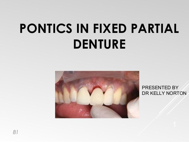 PONTICS IN FIXED PARTIAL DENTURE 1 PRESENTED BY DR KELLY NORTON 81
