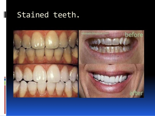 Stained teeth.