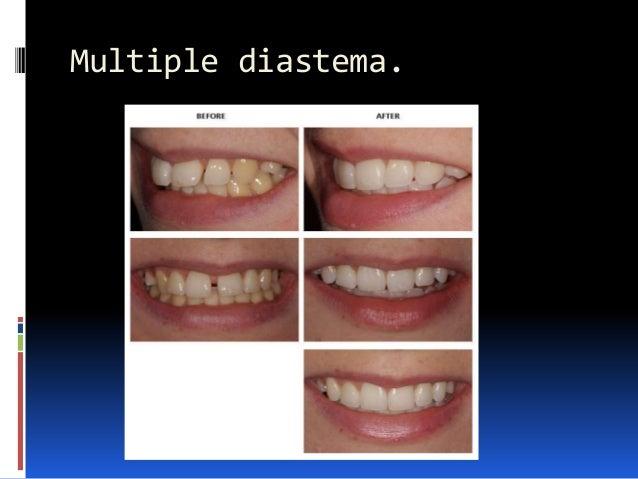 Multiple diastema.