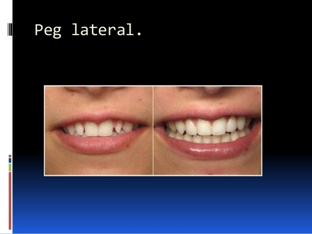 Peg lateral.