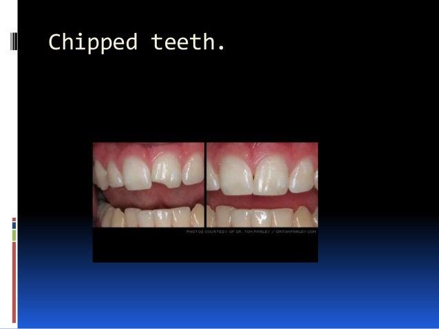 Chipped teeth.