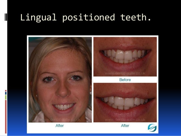Lingual positioned teeth.