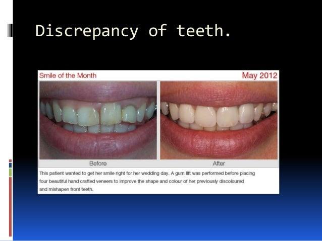Discrepancy of teeth.