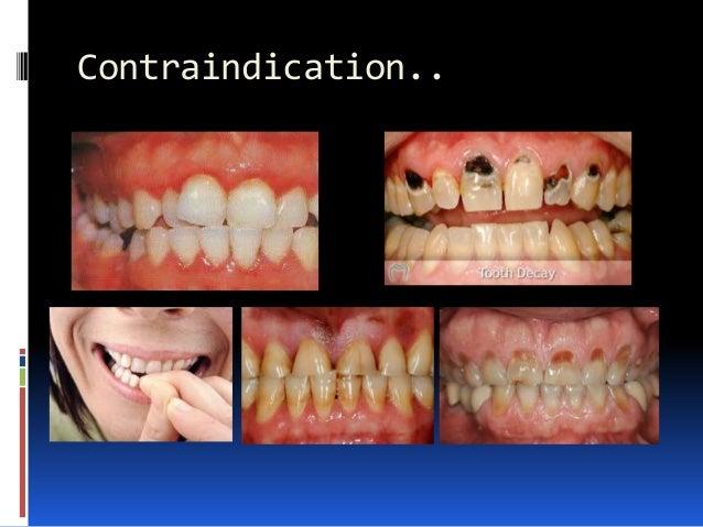 Contraindication..