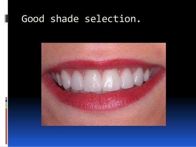 Good shade selection.